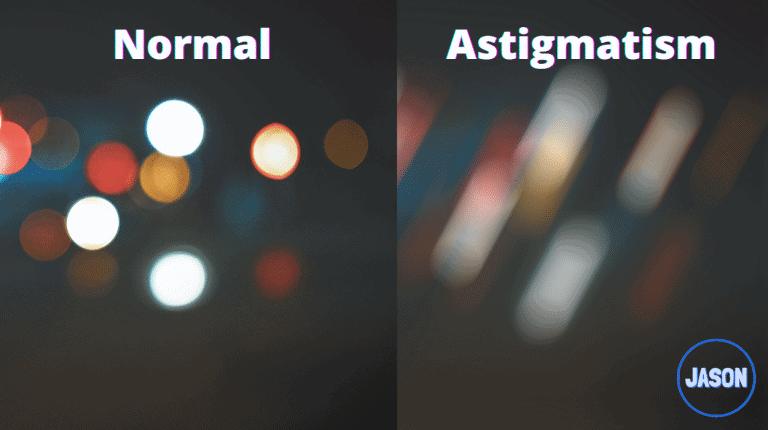 Astigmatism 101: Know if you Have It or It's Getting Worse